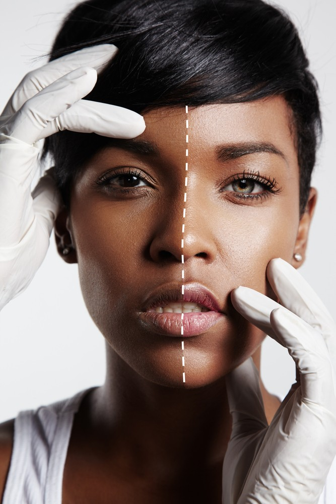 Skin Lightening For Beauty Vs. Skin Lightening to Treat Skin Conditions